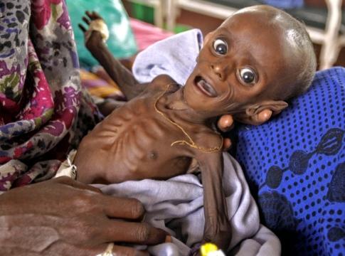 Детето, което стана символ на глада в Африка
